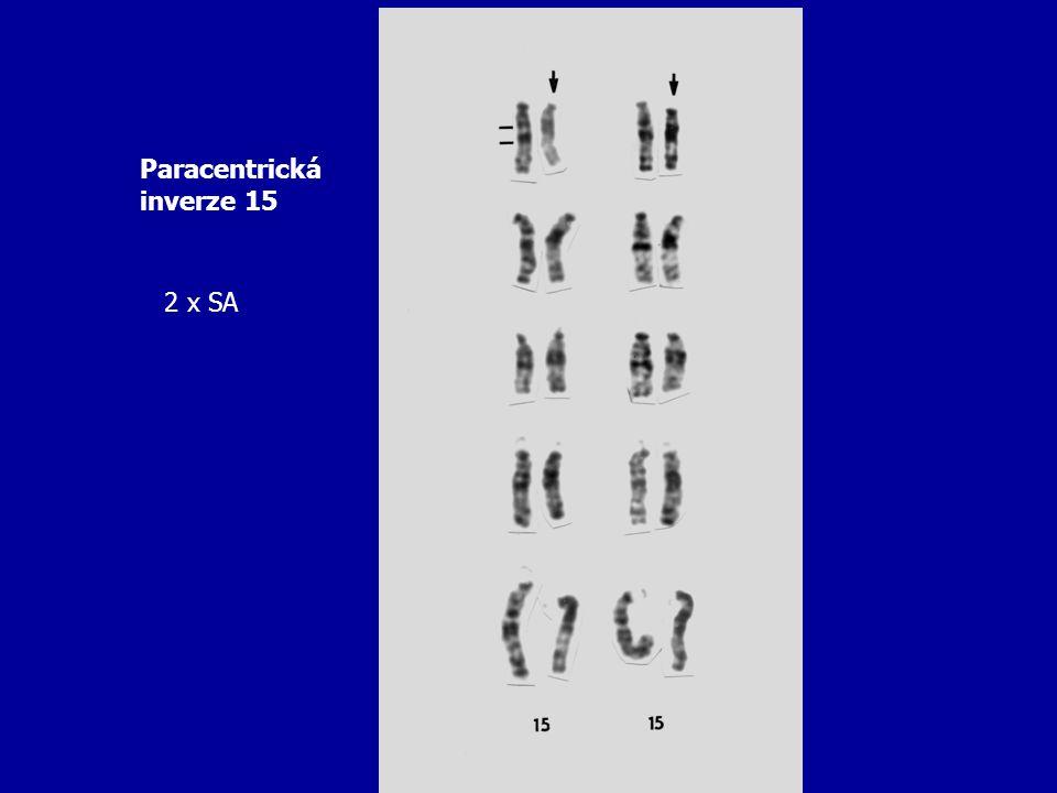 Paracentrická inverze 15