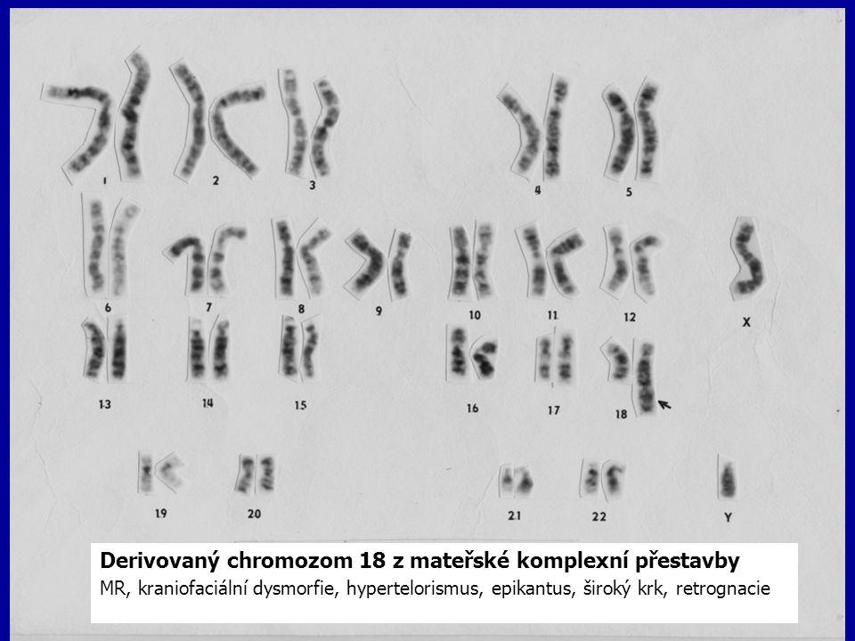Derivovaný chromozom 18 z mateřské komplexní přestavby