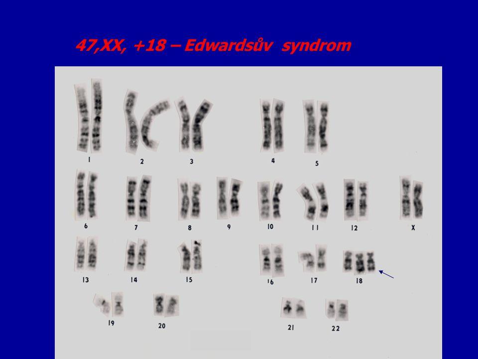 47,XX, +18 – Edwardsův syndrom