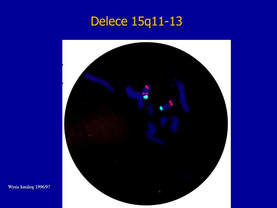 Delece 15q11-13 Wysis katalog 1996/97