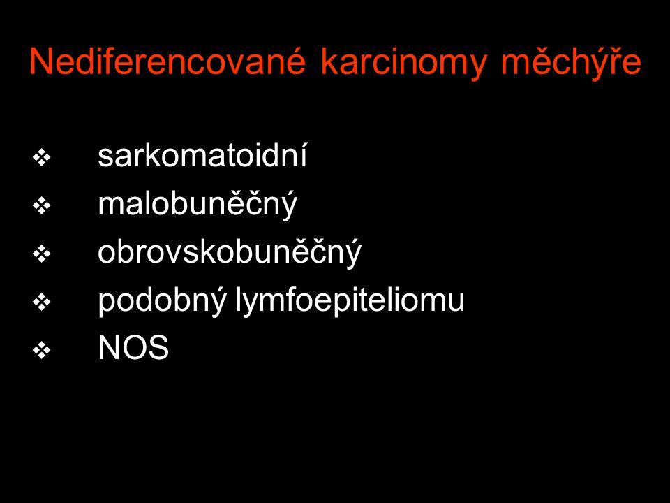 Nediferencované karcinomy měchýře