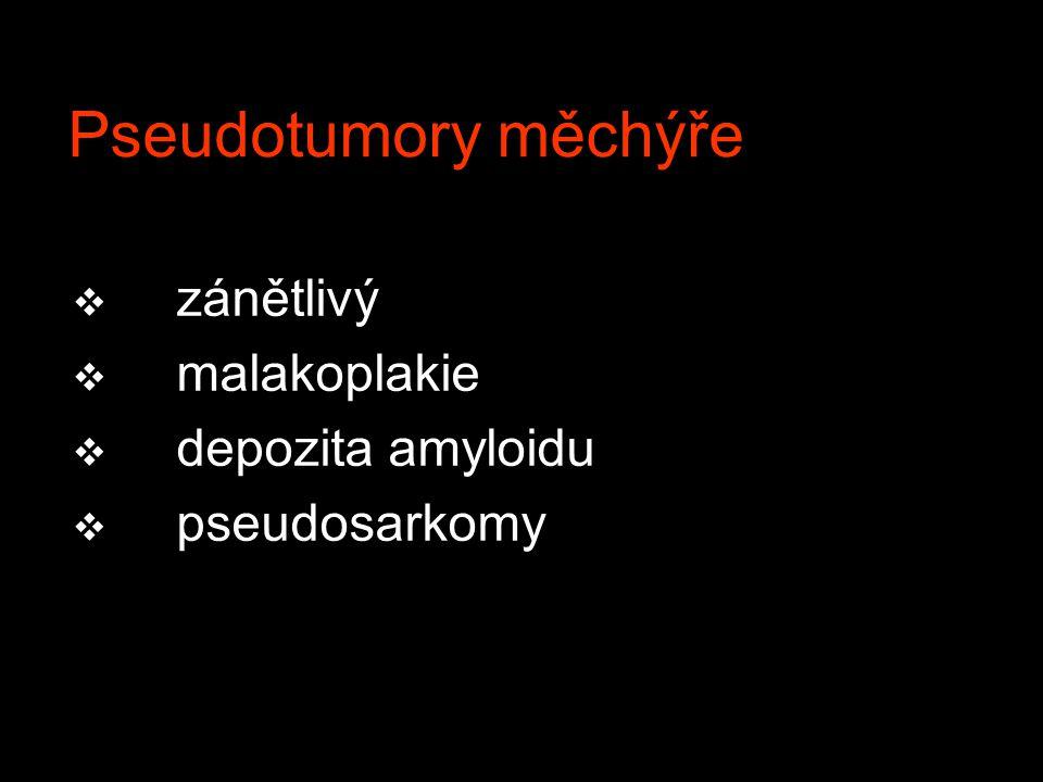 Pseudotumory měchýře zánětlivý malakoplakie depozita amyloidu