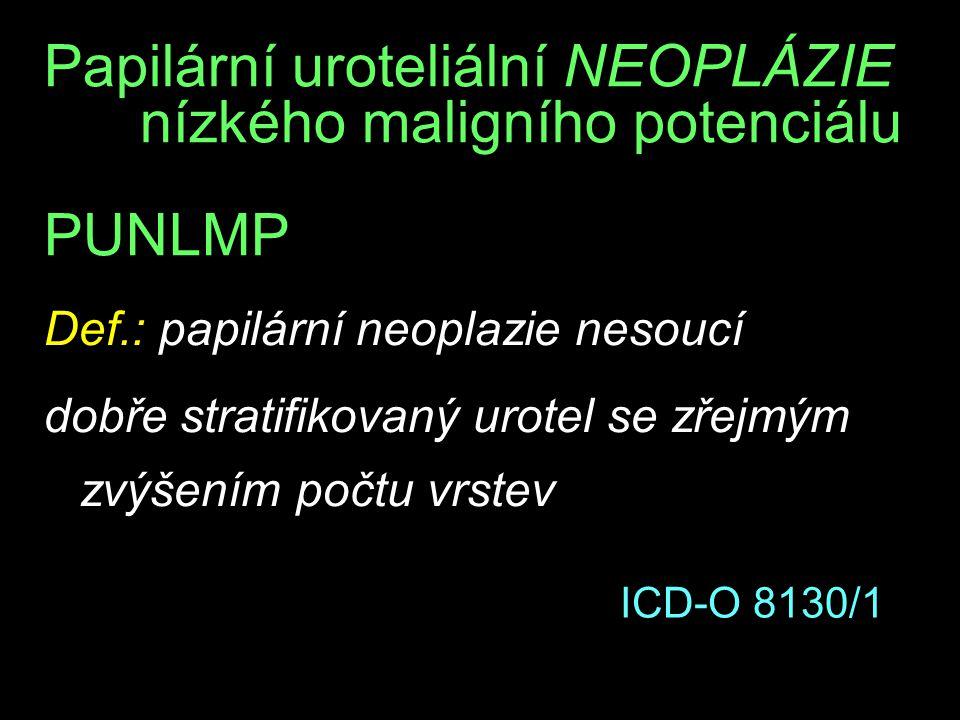 Papilární uroteliální NEOPLÁZIE nízkého maligního potenciálu PUNLMP