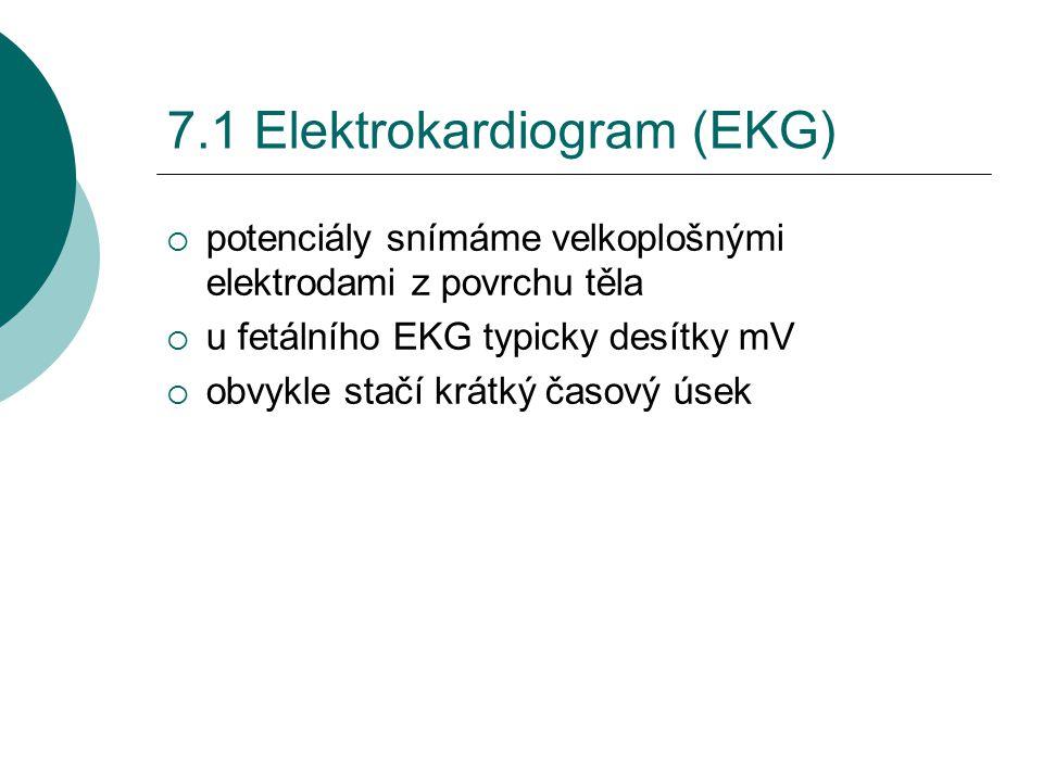 7.1 Elektrokardiogram (EKG)