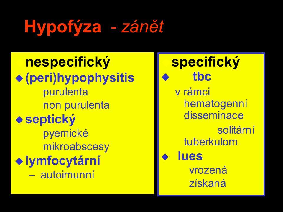 Hypofýza - zánět nespecifický specifický (peri)hypophysitis septický