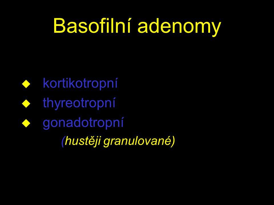 Basofilní adenomy kortikotropní thyreotropní gonadotropní