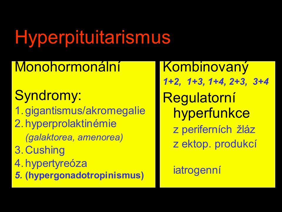 Hyperpituitarismus Monohormonální Syndromy: Kombinovaný