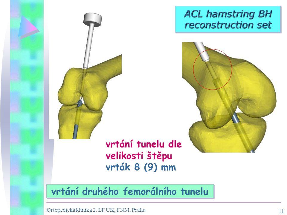 vrtání druhého femorálního tunelu