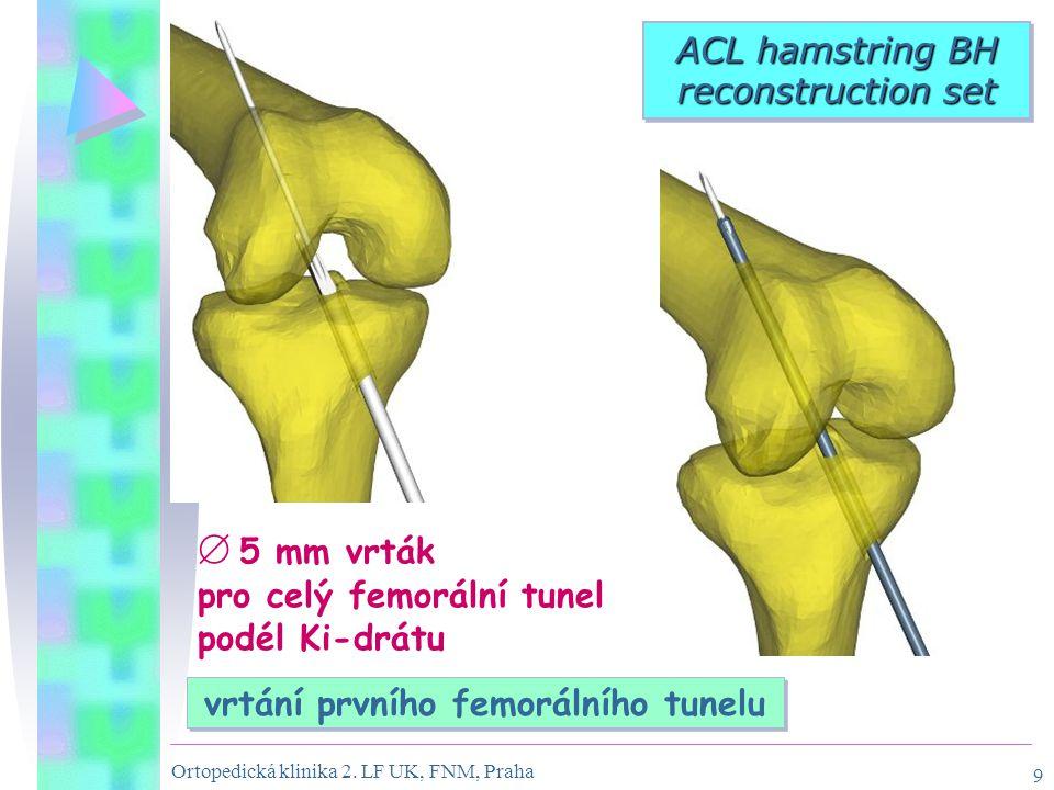 vrtání prvního femorálního tunelu