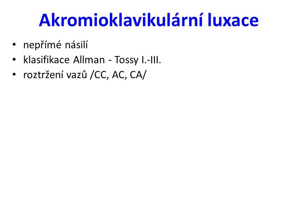 Akromioklavikulární luxace