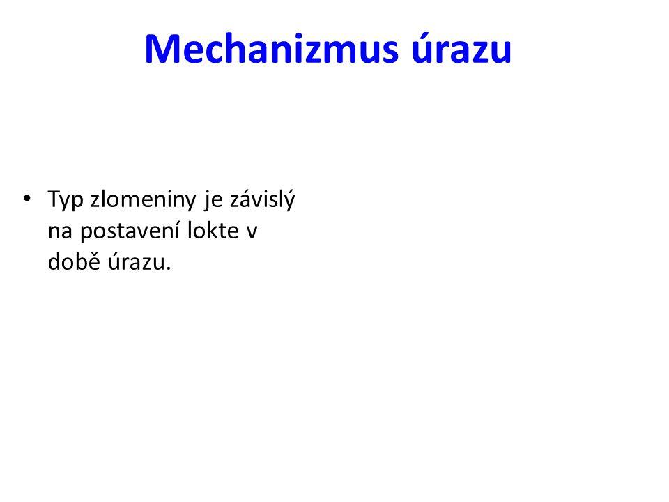 Mechanizmus úrazu Typ zlomeniny je závislý na postavení lokte v době úrazu.