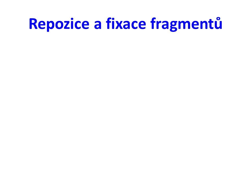 Repozice a fixace fragmentů