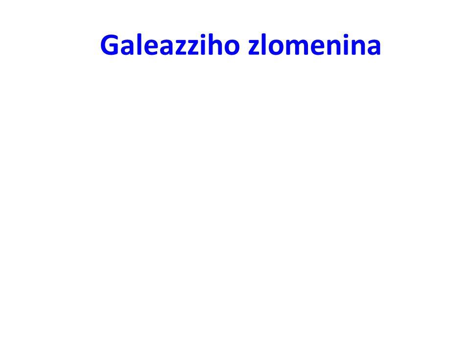 Galeazziho zlomenina