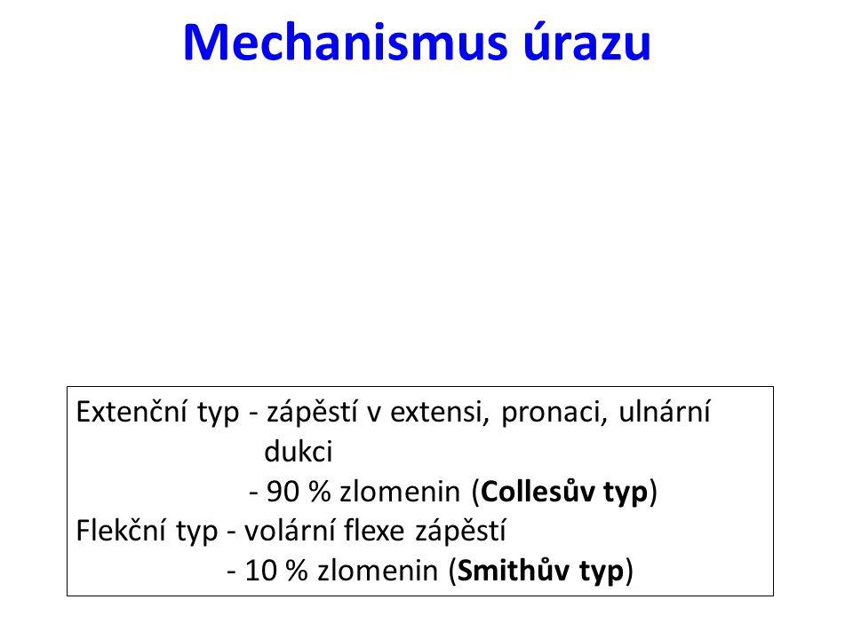Mechanismus úrazu Extenční typ - zápěstí v extensi, pronaci, ulnární