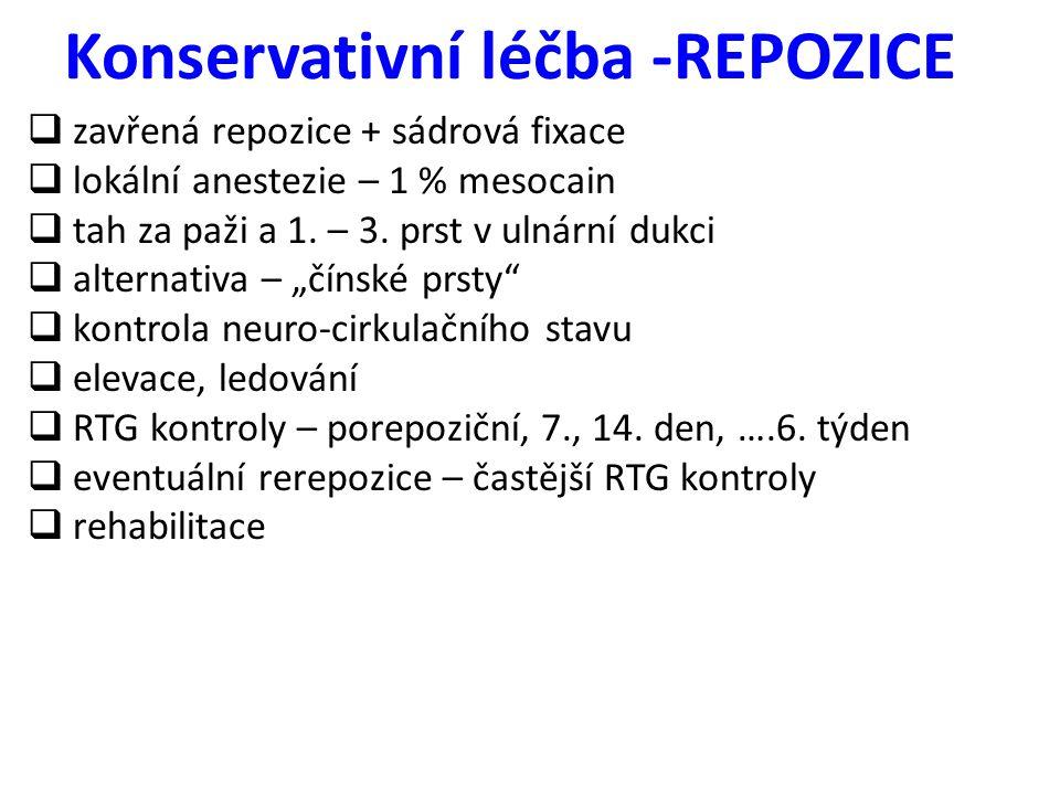 Konservativní léčba -REPOZICE