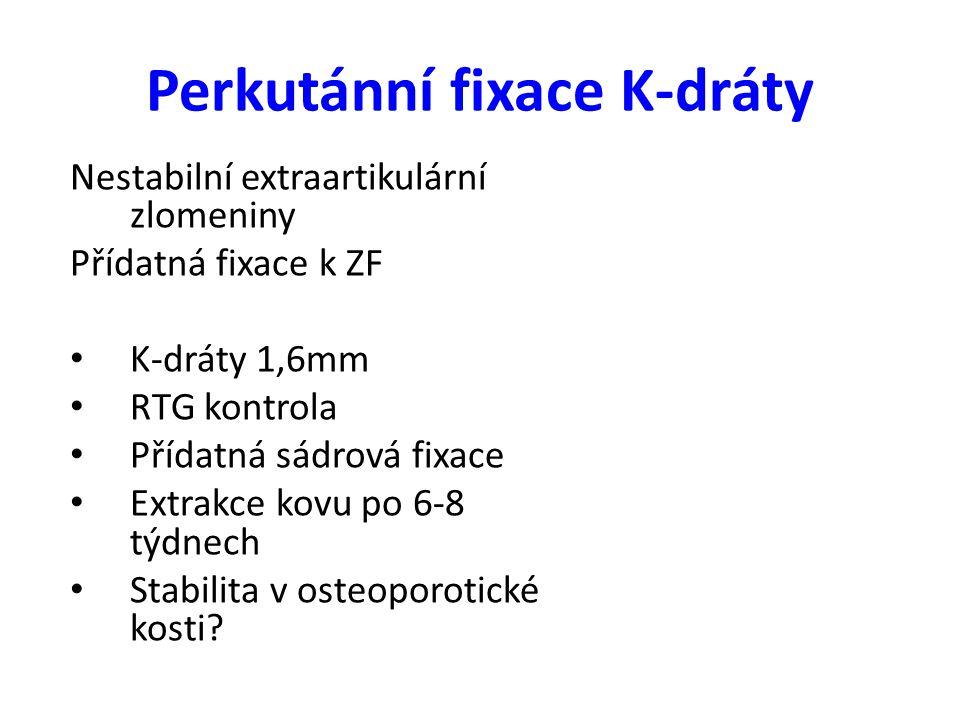Perkutánní fixace K-dráty