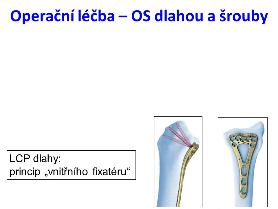 Operační léčba – OS dlahou a šrouby
