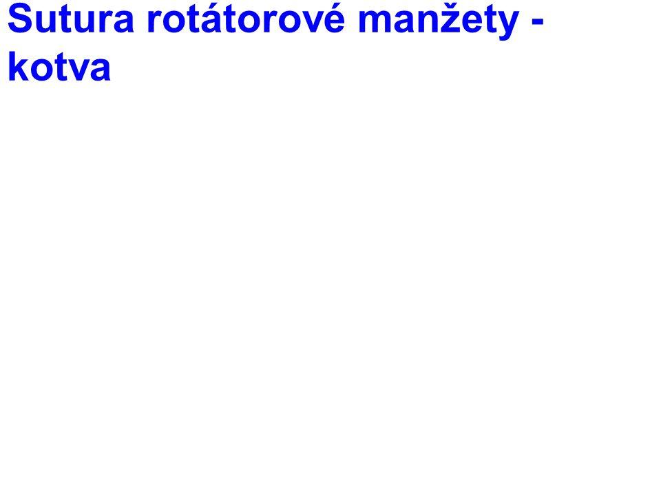 Sutura rotátorové manžety - kotva