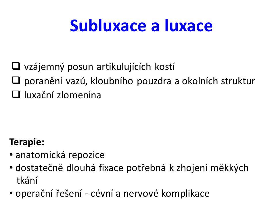 Subluxace a luxace vzájemný posun artikulujících kostí