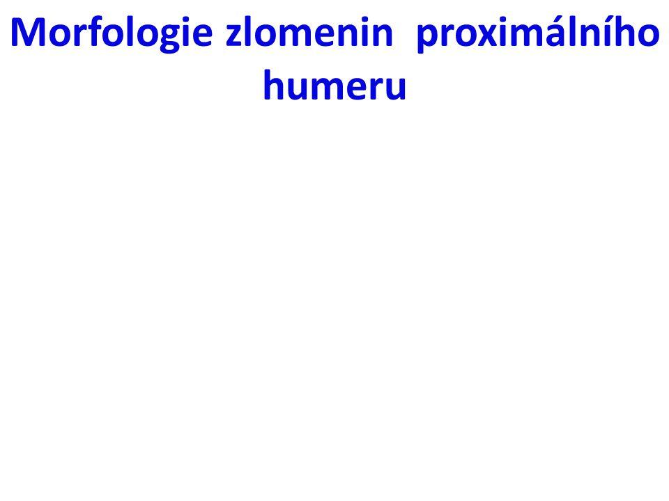 Morfologie zlomenin proximálního humeru