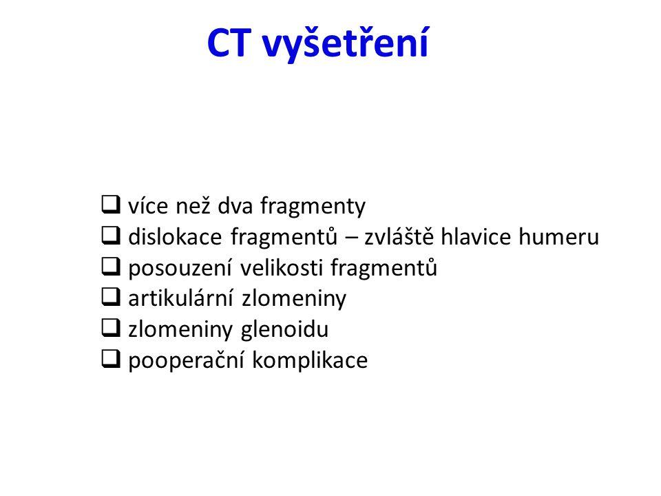 CT vyšetření více než dva fragmenty