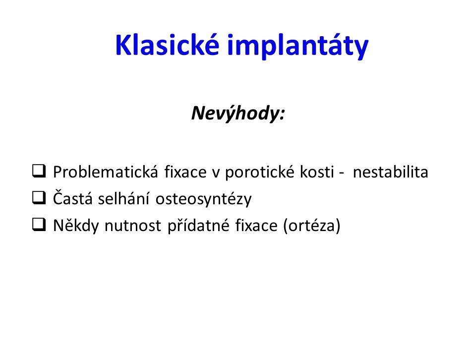 Klasické implantáty Nevýhody: