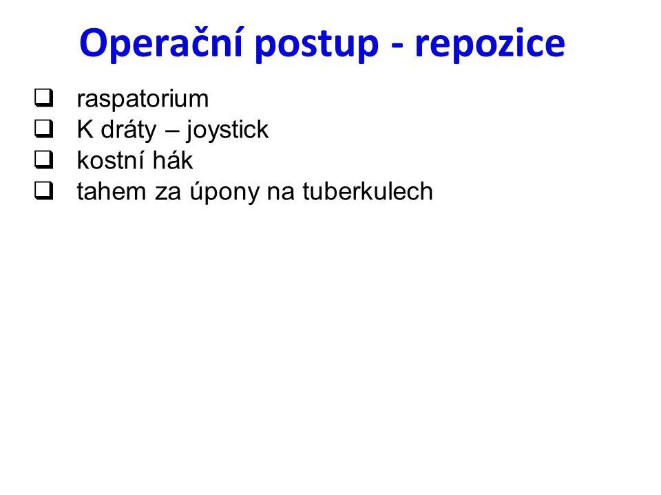 Operační postup - repozice