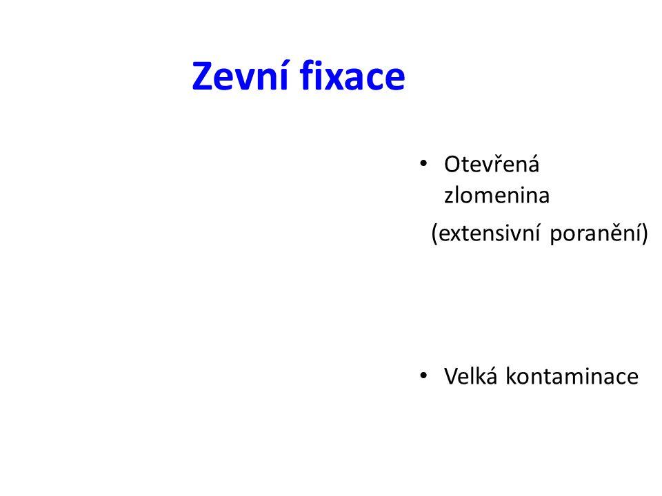 Zevní fixace Otevřená zlomenina (extensivní poranění)