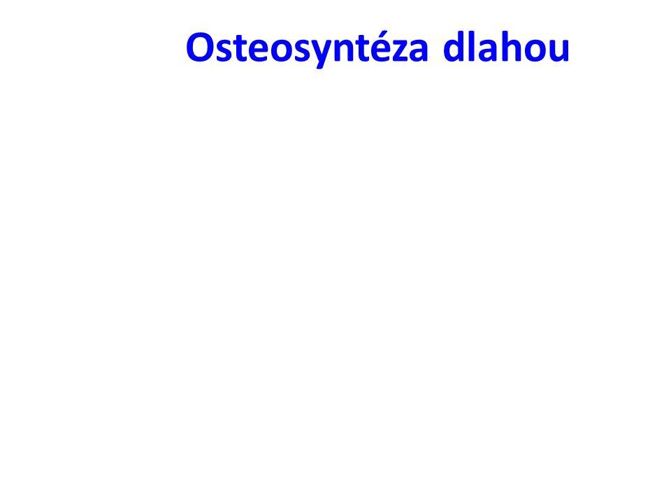 Osteosyntéza dlahou