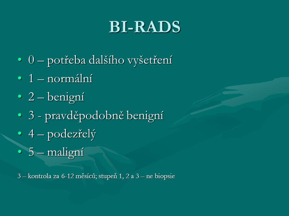 BI-RADS 0 – potřeba dalšího vyšetření 1 – normální 2 – benigní