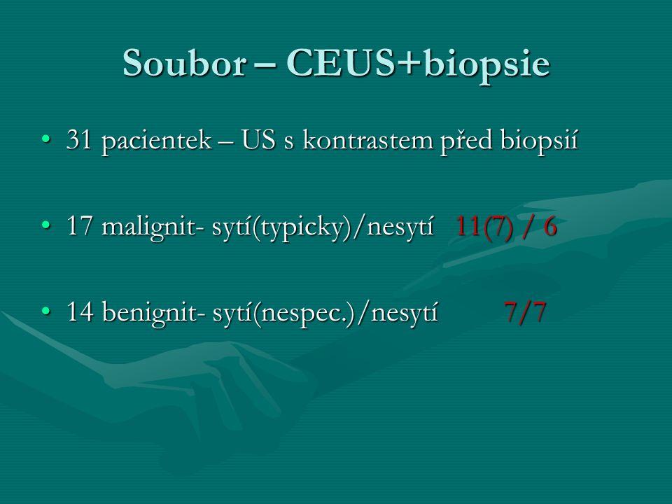 Soubor – CEUS+biopsie 31 pacientek – US s kontrastem před biopsií