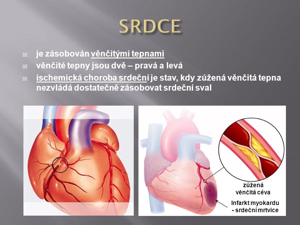 Infarkt myokardu - srdeční mrtvice