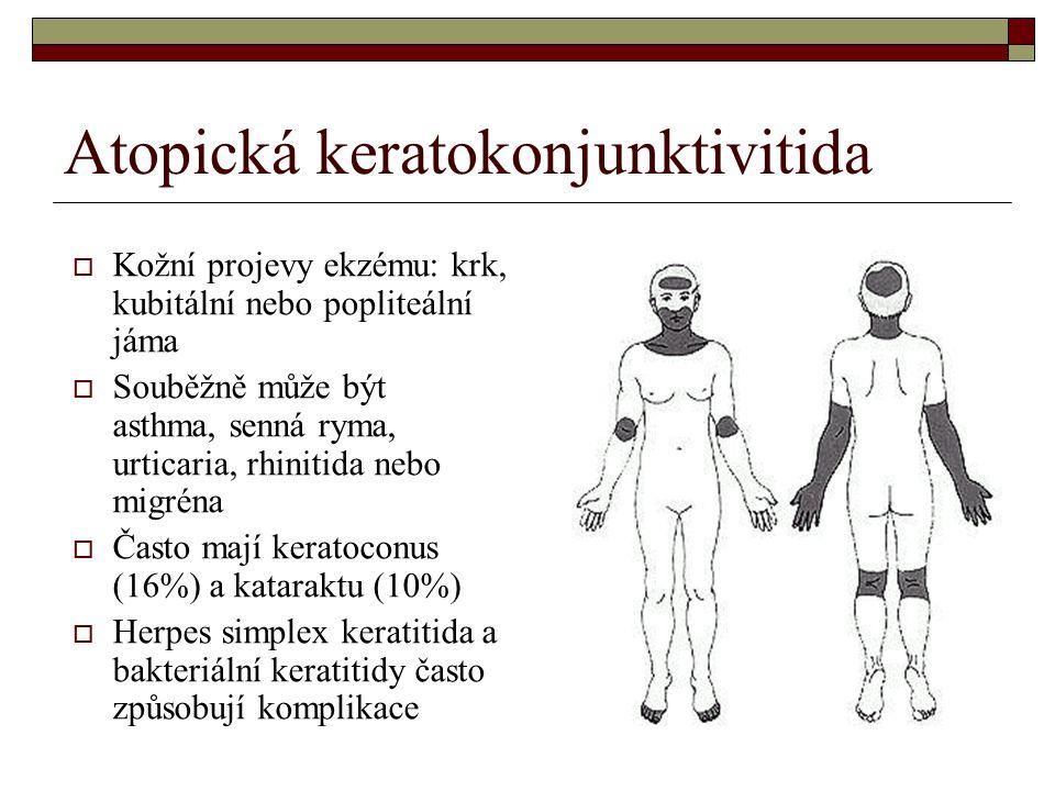 Atopická keratokonjunktivitida