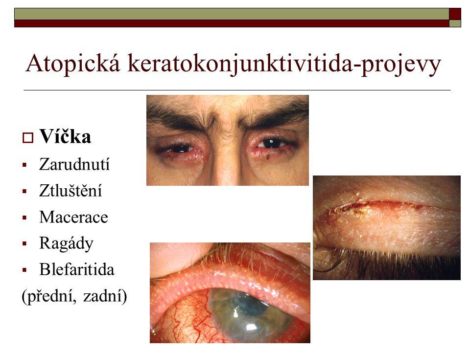 Atopická keratokonjunktivitida-projevy