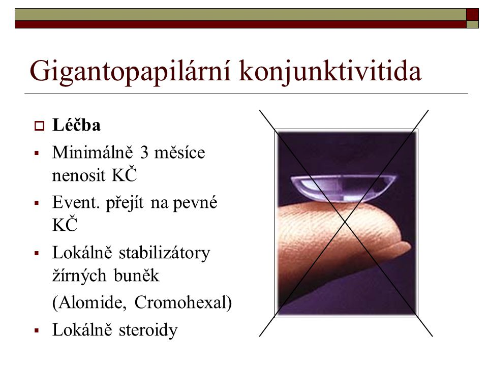 Gigantopapilární konjunktivitida
