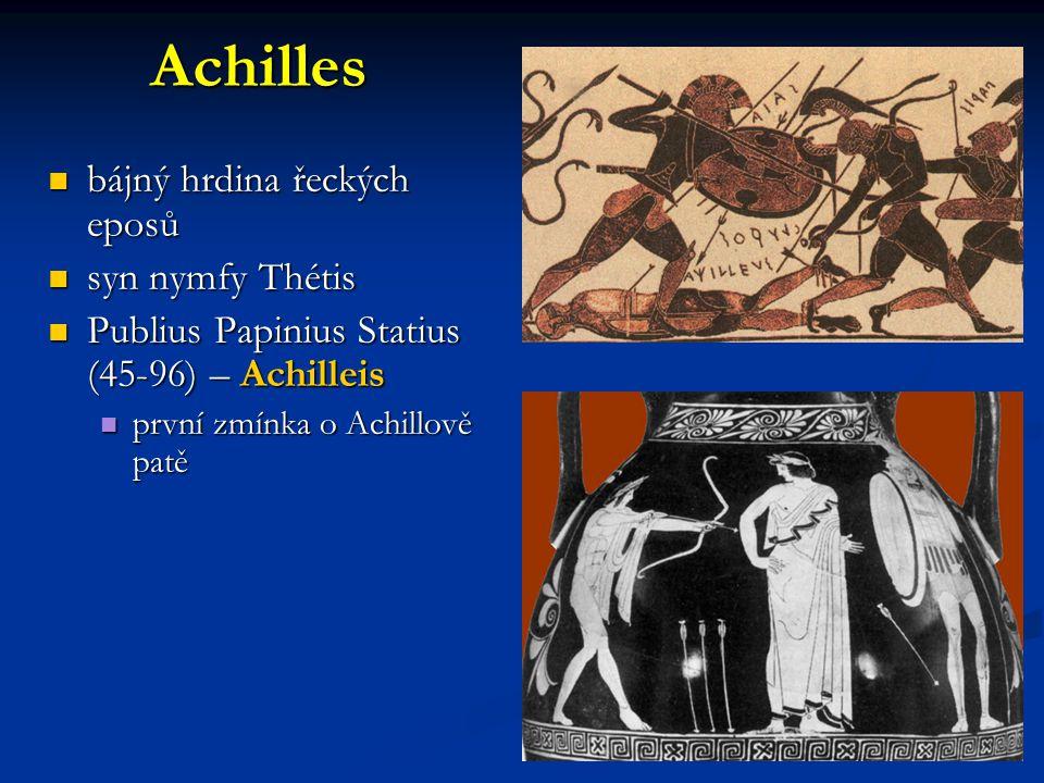 Achilles bájný hrdina řeckých eposů syn nymfy Thétis