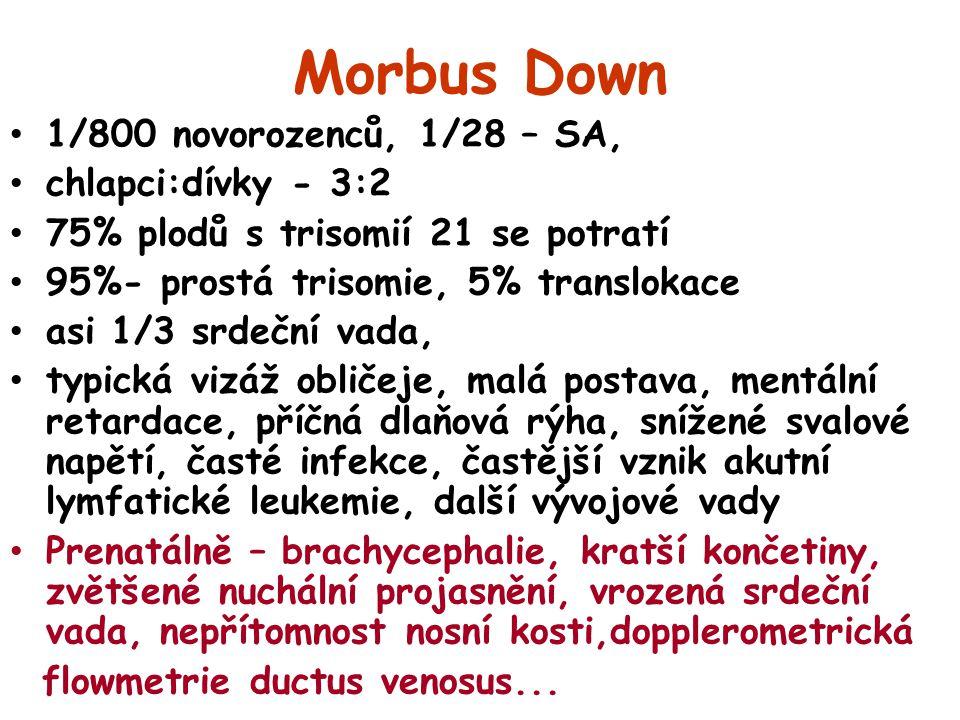Morbus Down 1/800 novorozenců, 1/28 – SA, chlapci:dívky - 3:2