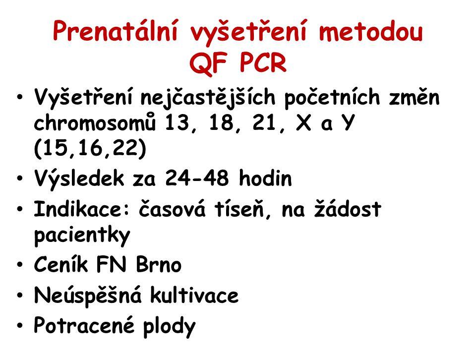 Prenatální vyšetření metodou QF PCR