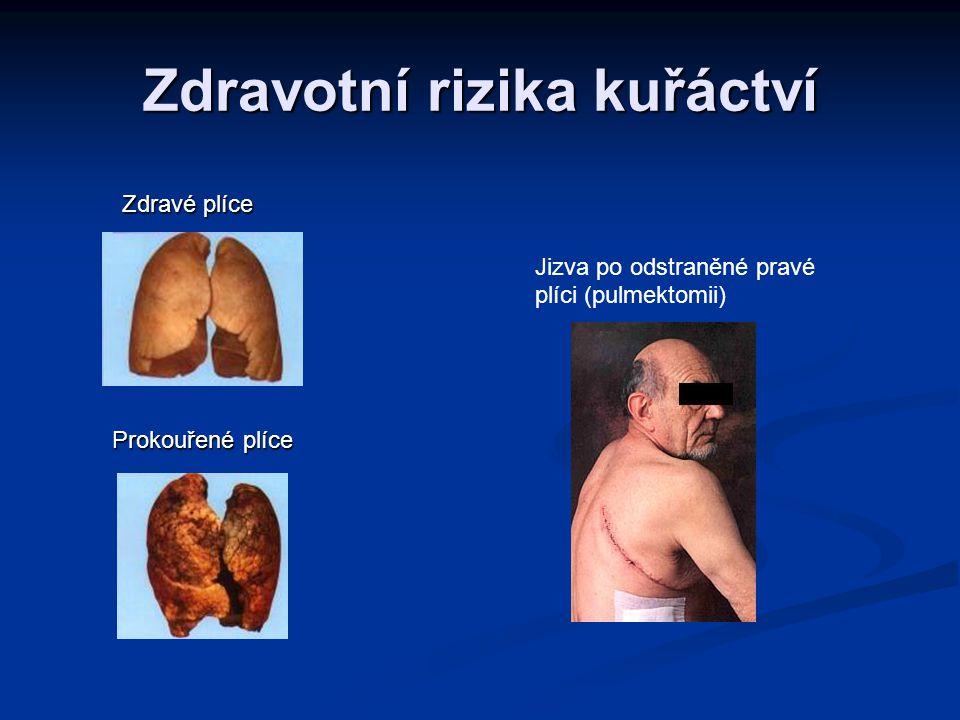 Zdravotní rizika kuřáctví