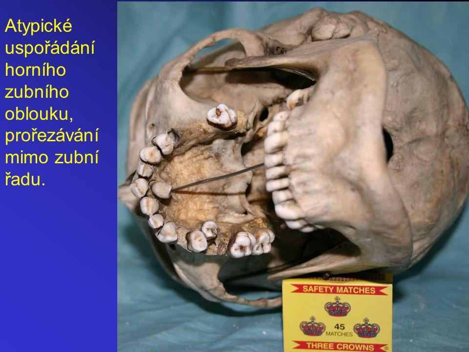 Atypické uspořádání horního zubního oblouku, prořezávání mimo zubní řadu.