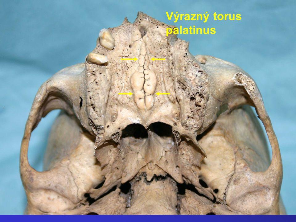 Výrazný torus palatinus