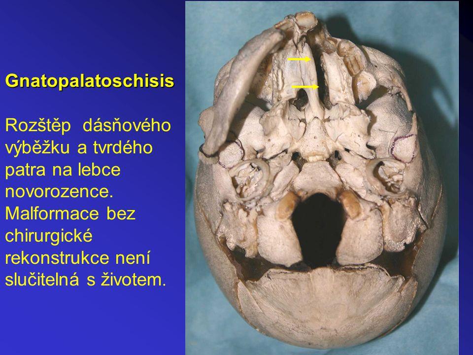Gnatopalatoschisis Rozštěp dásňového výběžku a tvrdého patra na lebce novorozence.