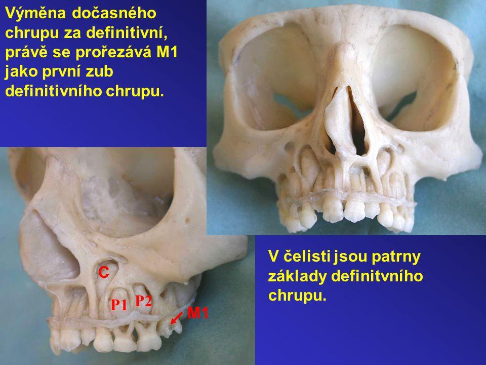 Výměna dočasného chrupu za definitivní, právě se prořezává M1 jako první zub definitivního chrupu.