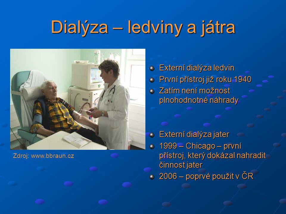 Dialýza – ledviny a játra