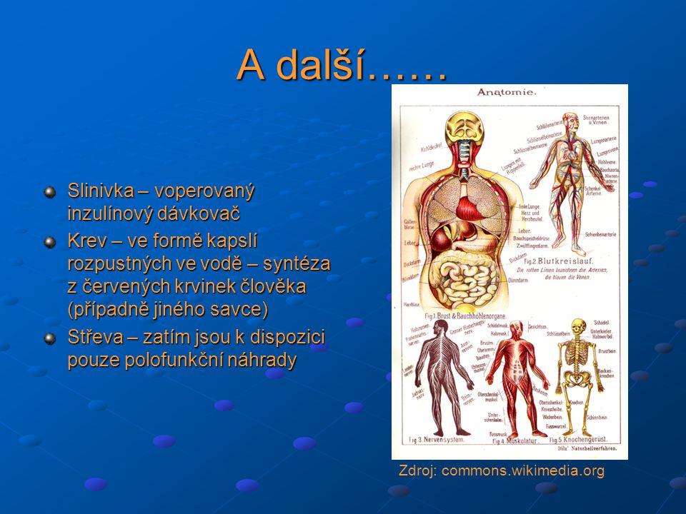 A další…… Slinivka – voperovaný inzulínový dávkovač