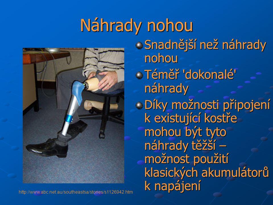 Náhrady nohou Snadnější než náhrady nohou Téměř dokonalé náhrady
