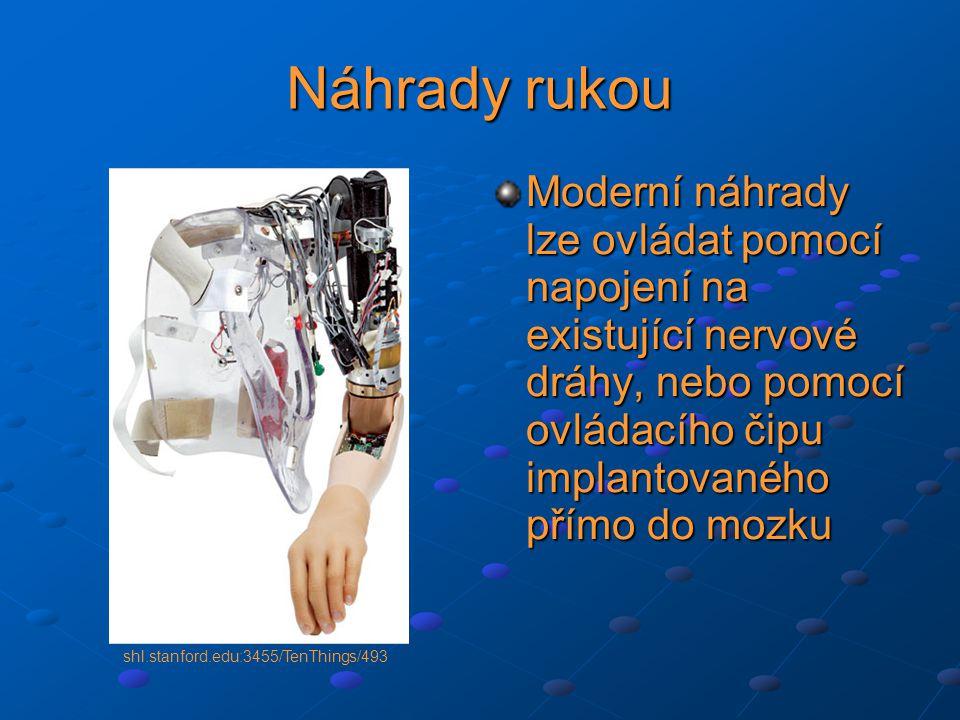 Náhrady rukou Moderní náhrady lze ovládat pomocí napojení na existující nervové dráhy, nebo pomocí ovládacího čipu implantovaného přímo do mozku.