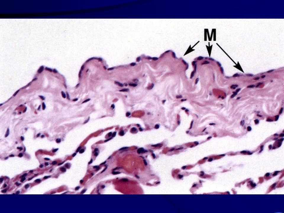 Pleura serózní membrána - mezotel parietální a viscerální list