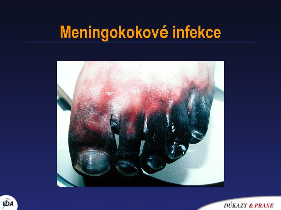 Meningokokové infekce