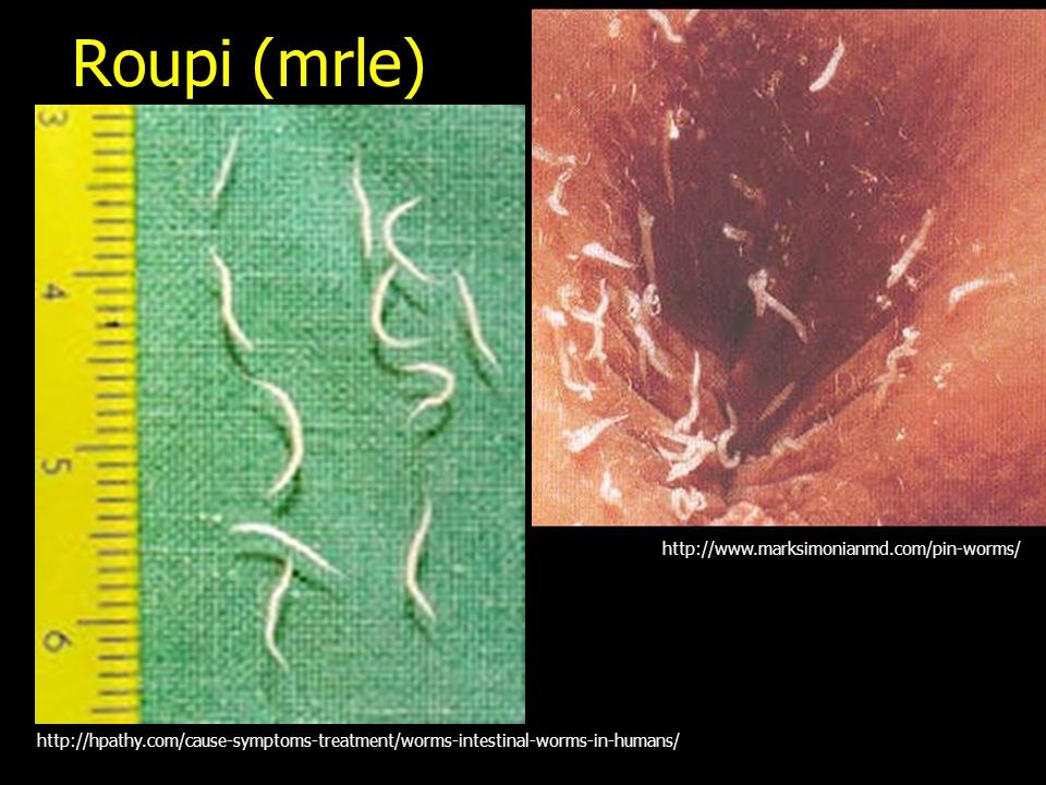 Roupi (mrle) http://www.marksimonianmd.com/pin-worms/
